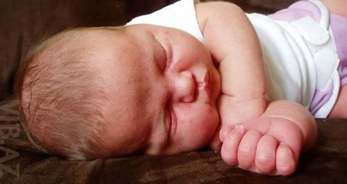 Угревая сыпь у младенца