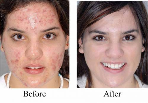 Лицо до и после применения Третиноина