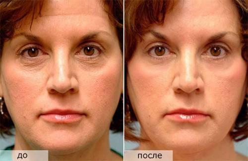 Кожа до и после применения Третиноина