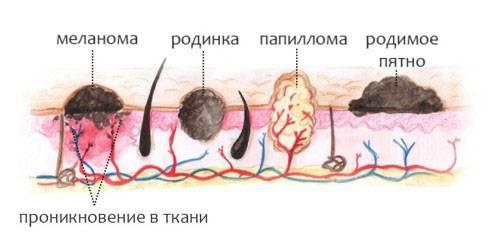 так выглядят папилломы