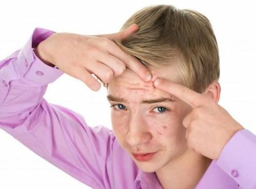 Прыщи у подростка на лице