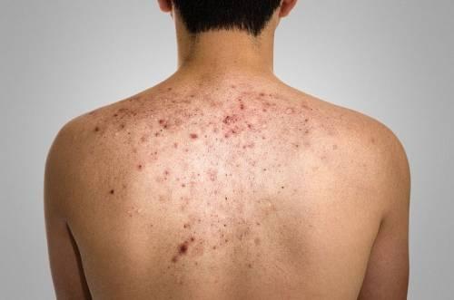 Угревая сыпь на спине