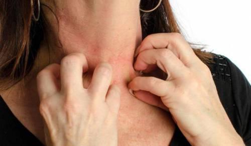 Зуд кожи на шее