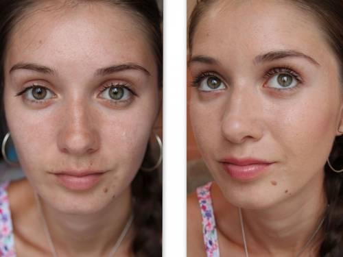 Лицо до и после маски из бодяги