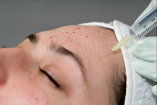 Процедура против морщин на лбу