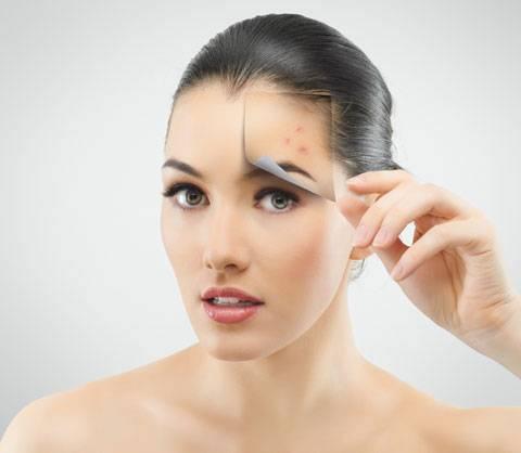 Эффект после лечения акне по технологии Элос