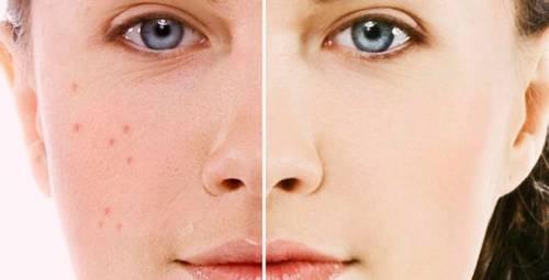 До лечения прыщей на лице и после