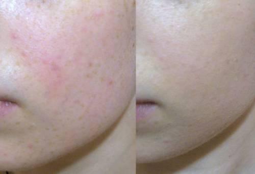 Кожа до и после лечения