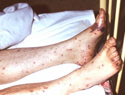 Кровоподтеки на ногах