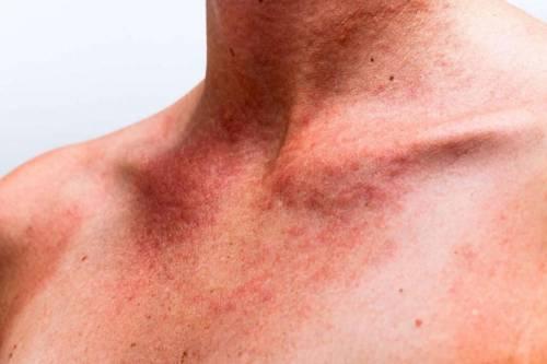 Высыпания на шее и груди