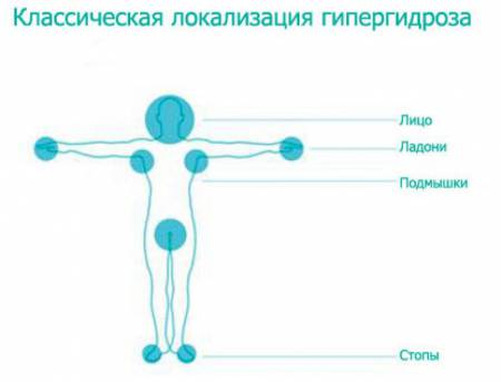 Локализация гипергидроза