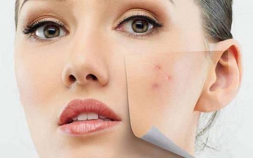 Устранение дефектов кожи косметическим процедурами