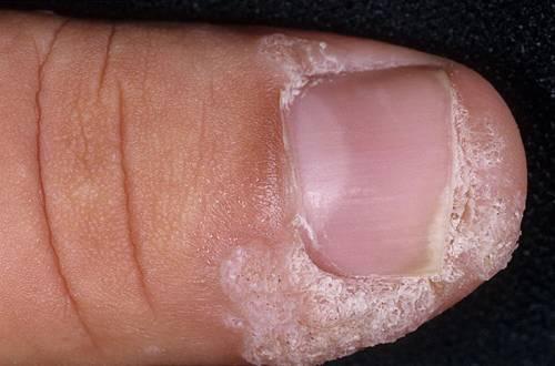 Наросты на коже пальцев
