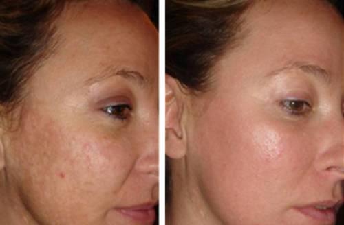 Кожа до и после лечения шрамов от акне