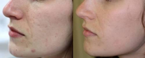 Лицо до и после применения ухаживающих средств