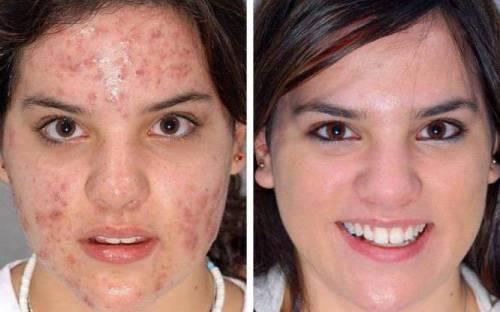 Лицо до и после лечения от прыщей
