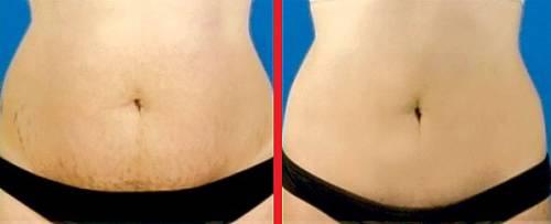 Кожа до и после использования мумие