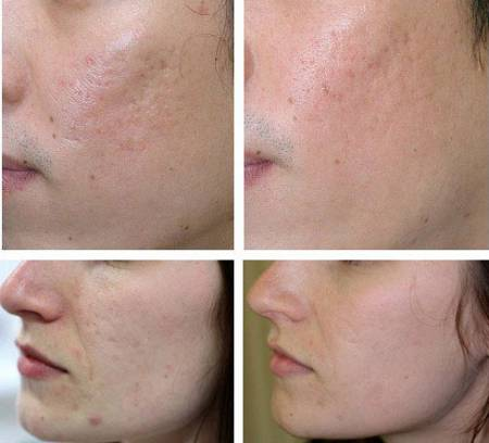 Лицо в ходе лечения Контрактубексом
