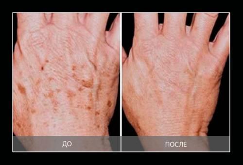Кожа рук до применения масок и после