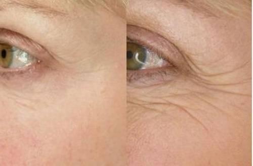 Омолаживание кожи вокруг глаз