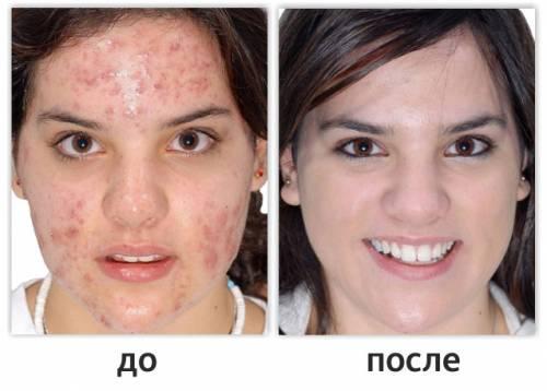 До лечения демодекоза и после