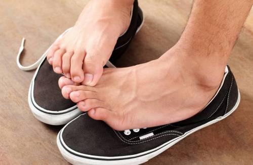 Зуд ног