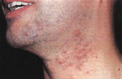 Прыщи после бритья