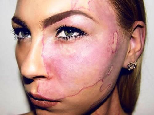 Розовое пятно на лице