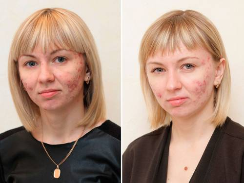 До применения ретиноидов и после