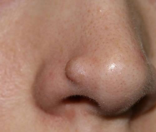 Образование родинки на носу