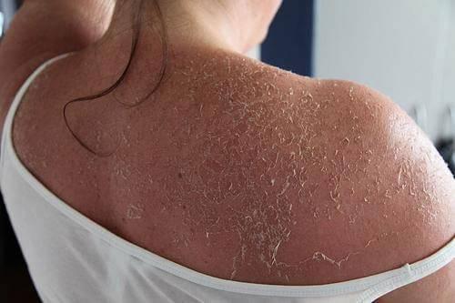 Облезает кожа на спине