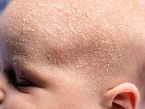 Шелушение кожи головы у младенца
