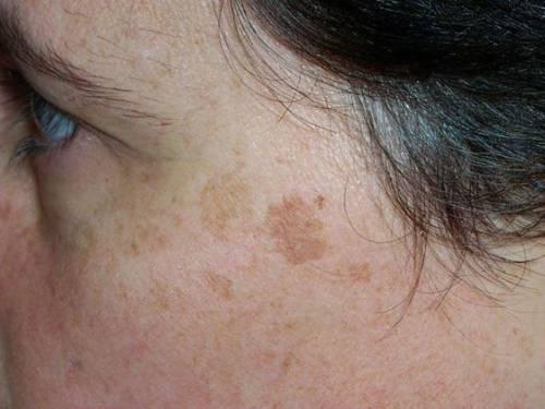Коричневые пятна на лице