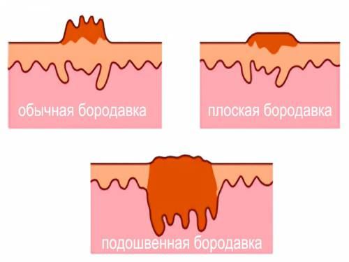 Виды подошвенных бородавок