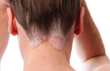 Высыпания в волосистой части головы