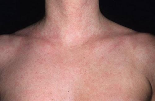 Сыпь на грудине в виде прыщиков