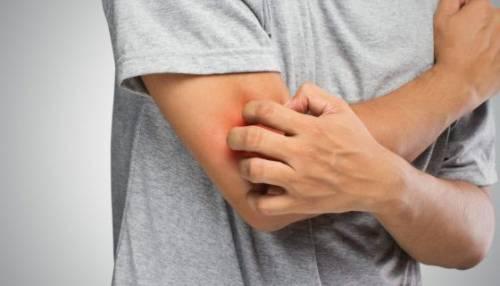 Зуд кожи на руках