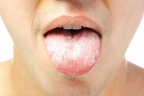 Кандидоз в полости рта