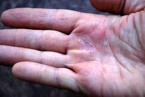 Шелушение рук