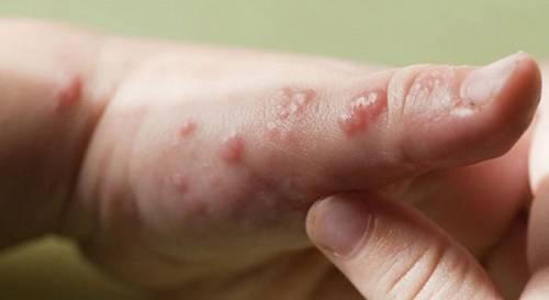 Сыпь на руках при дисгидрозе
