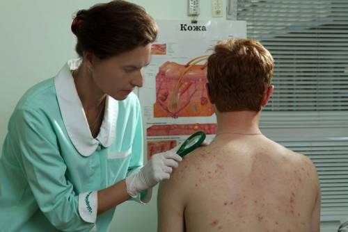 Врач исследует сыпь на теле пациента
