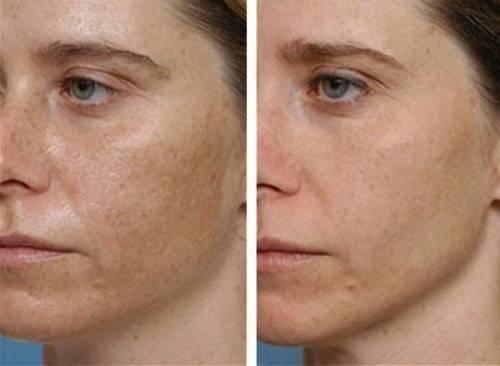 Лицо с рубцами от прыщей до лечения и после