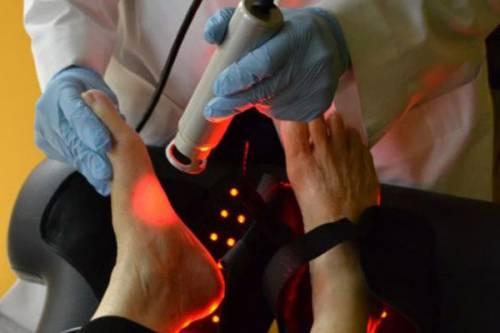 Лазерное удаление мозоли