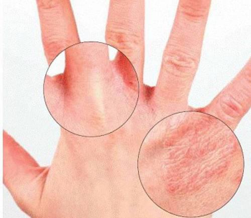 Высыпания между пальцами рук