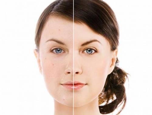 Лицо до и после использования средств для проблемной кожи