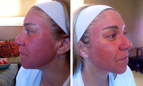 Покраснение кожи после пилинга