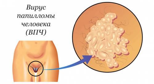 Вирус папилломы у женщин