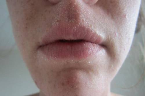 Шелушение кожи вокруг губ