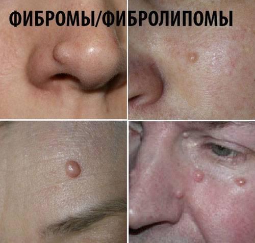 Фибромы и фибролипомы
