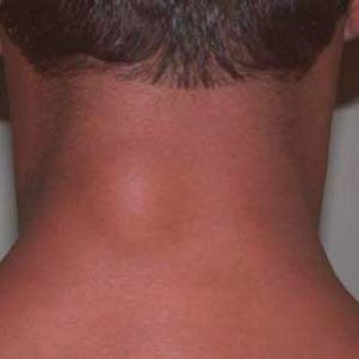 Крупный жировик на шее